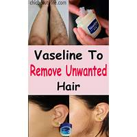 Cheapest get rid of unwanted facial hair naturally