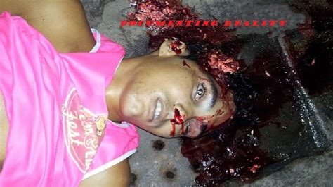 Girl Gets Shot In Head With Shotgun