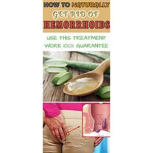 Hemorrhoids saviour cure hemorrhoids forever natural hemorrhoids treatment offer