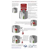 High blood pressure exercise program blue heron health news methods