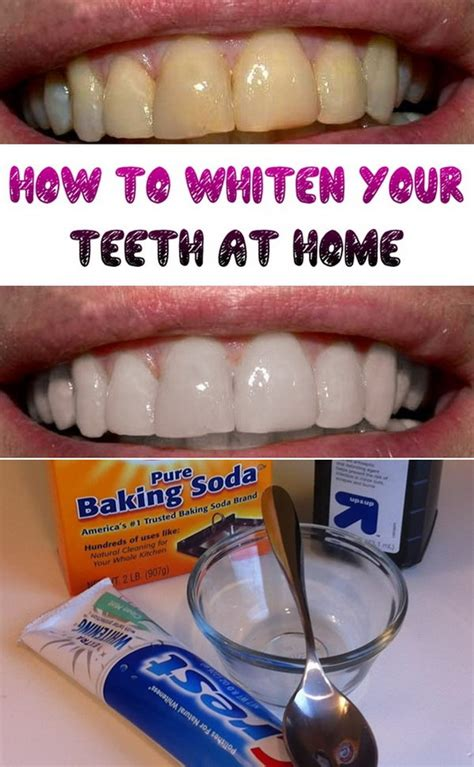 Homemade Remedies For Whiter Teeth The Natural Way
