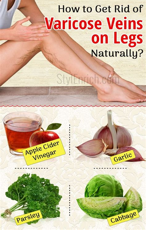 How To Treat Varicose Veins In Legs