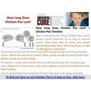How to cure chicken pox in 3 days or less step by step