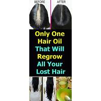 How to naturally regrow lost hair scam