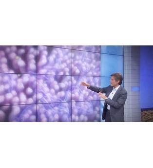Kirstie Alley Weight Loss Dr Oz