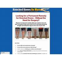 Cheapest knocked knees no more hot for year 2018
