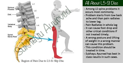 L5 Herniated Disk Therapy