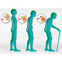 Guide to la cura dell'osteoporosi