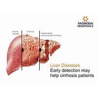 Liver disease survivors guide cirrhosis is it real?