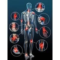 Best ma trisez votre arthrite le traitement naturel contre l arthrite online