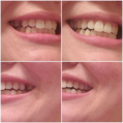 make your own temporary veneers teeth Image