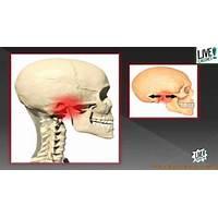 Mandibula sana como curar el trastorno de atm scam?