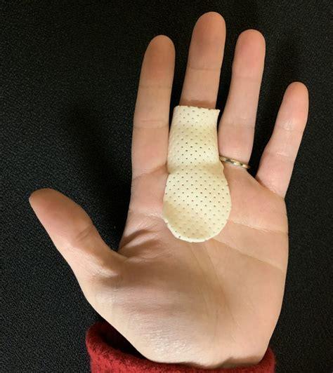 Mcp Splint For Trigger Finger