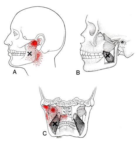 Medial Pterygoid Trigger Point