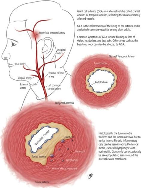 Migraine Headache Versus Temporal Arteritis