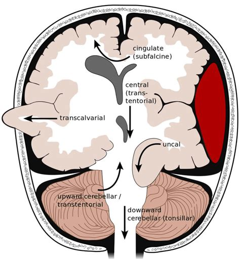 Most Common Brain Herniation