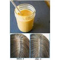 Natural remedy to reverse gray hair massive conversion rate!! comparison