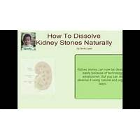Cheapest naturally remove kidney stones surgeons hate me for this!