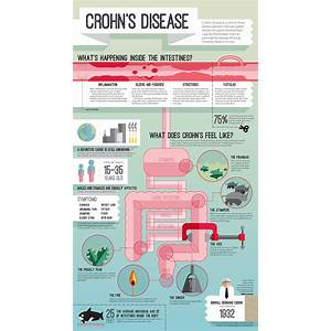 Guide to no more crohn's diseasethe crohn's disease treatment and natural crohn's disease cure