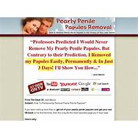 Pearly penile papules removal brand new market hot online tutorial