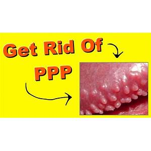 Best pearly penile papules removal how to remove pearly panile papules at home online