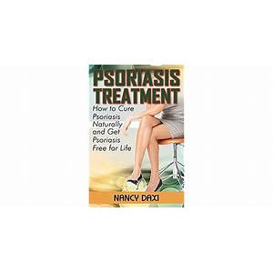 Psoriasis free for life how to cure psoriasis easily, naturally and for life promotional code