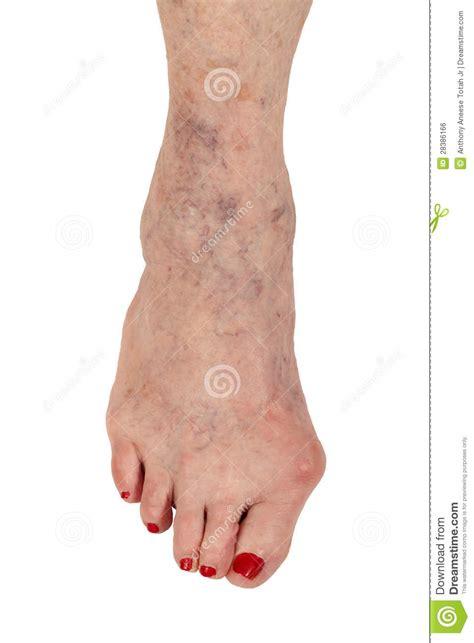 Rheumatoid Arthritis Varicose Veins