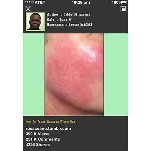 Rosacea free forever how to cure rosacea easily, naturally and forever secret codes