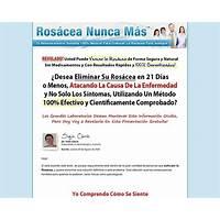 Rosacea nunca ms 90% de comisin promo code