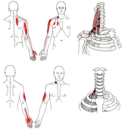 Scalene Trigger Points
