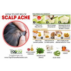 Scalp bumps treatment ? get rid of scalp bumps does it work?