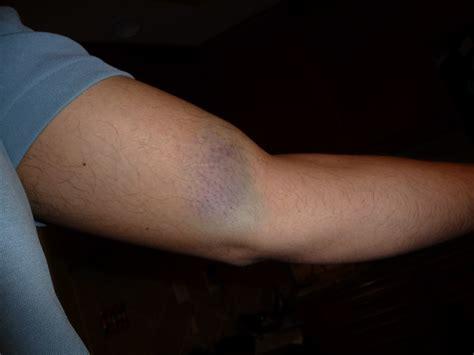 Shooting Shotgun Bruise On Bicep