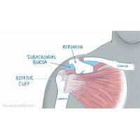 Shoulder pain no more (tm): top shoulder pain healing product on cb scam