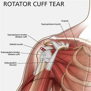 Shoulder pain treatment, rotator cuff injury treatment shoulder pain no more! bonus