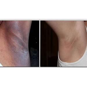 Skin lightening skin whitening melasma dark underarms hyperpigmentation skin lightening report offer
