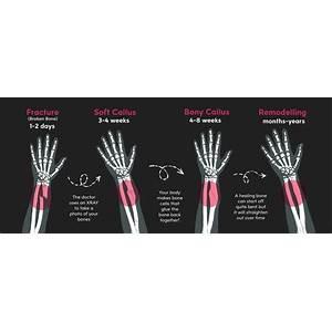 Speed up fracture healing technique