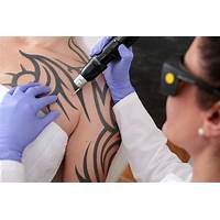 Tattooentfernung technik promo