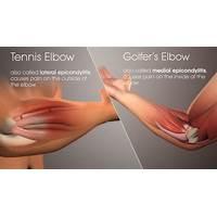 Best tennis elbow & golfers elbow cure unique elbow pain program