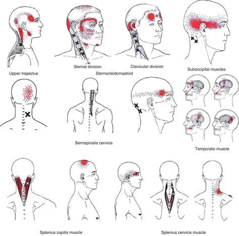Tension Headache Trigger Points