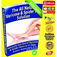 Coupon for the all natural varicose & spider vein solution: high converting offer