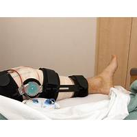 The essential acl reconstruction and recovery guide tutorials