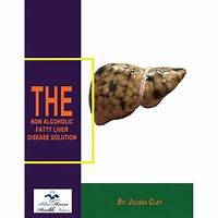 Guide to the fatty liver solution: a holistic approach to a healthier liver