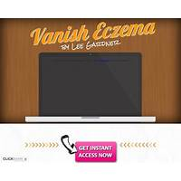 The first proven eczema cure guide from trusted vendor in health niche coupon codes