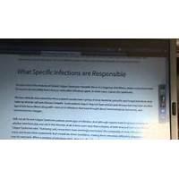 The lupus reversing breakthrough *new site great conversions programs