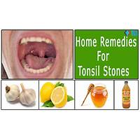 Tonsil stones cure programs