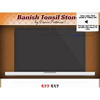 Tonsil stones! *up to $22 sale* new vsl! free tutorials