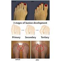 Treat your feet: exercises to treat and prevent common foot ailments step by step