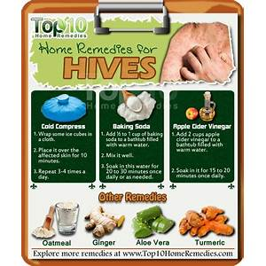 Free tutorial ultimate natural urticaria treatment