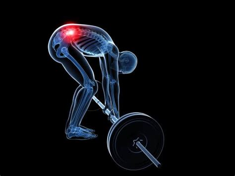 Weight Training Herniated Disc
