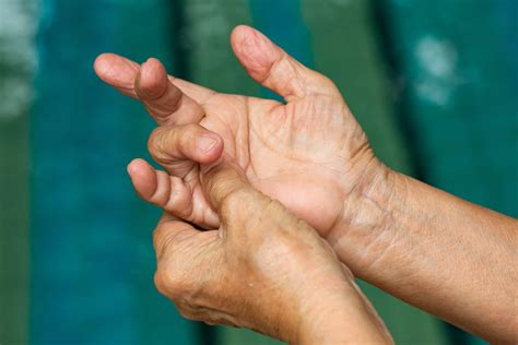 What Causes Trigger Thumb